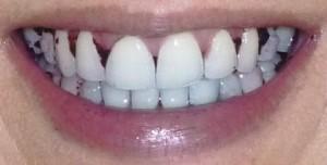 Food stuck in teeth smile